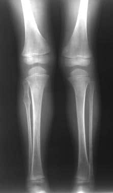Multiple osteochondromatosis. Plain radiograph of