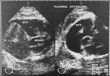 Coronal (left) and axial (right) fetal sonograms o