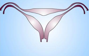 Uterus, müllerian duct abnormalities. Arcuate uter