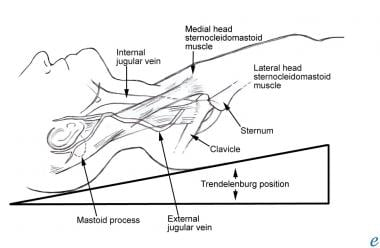 Diagram of external jugular vein going up over edg