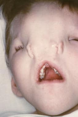 The photograph shows a child with median nasal cle