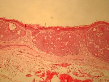 Tumor of the follicular infundibulum shows a plate