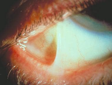 Ocular manifestations of cicatricial pemphigoid in