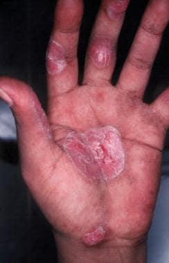 Palmar lesions of discoid lupus erythematosus.