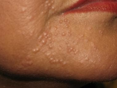 Lupus miliaris disseminatus faciei.