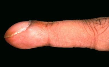 Clubbed fingernail.