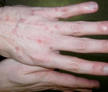 Verrucous or seborrheic keratosis–like lesions of