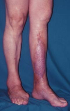 Clinical Case 4. Postoperative result. Oblique vie