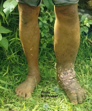 Filariasis. Unilateral left lower leg elephantiasi