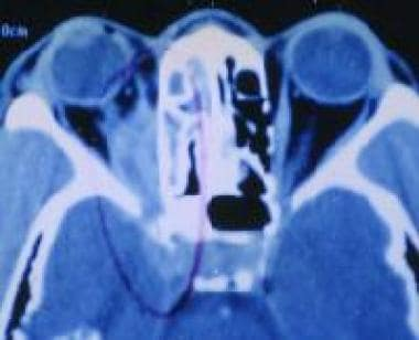 CT scan of a patient who is suspected of having mu