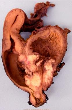 Cross-section through the bladder, uterus, and vag