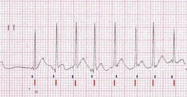 Lead II rhythm strip of a surface ECG from a patie