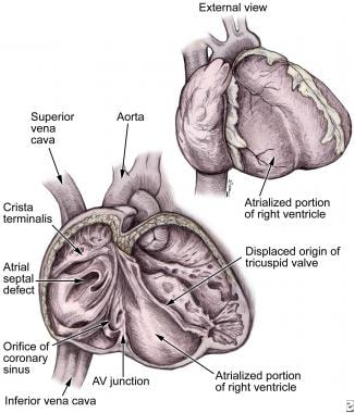 Anatomical features of Ebstein malformation. Note