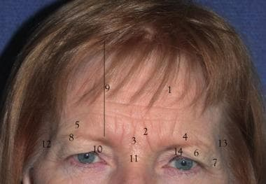 1. Forehead rhytids 2. Corrugator rhytids 3. Pro