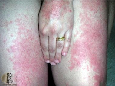 Polymorphous light eruption on the thighs and hand