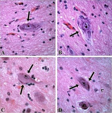 Dysmorphic neurons (arrows), with cytoplasm showin