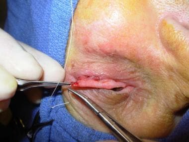 4-0 polyglactin suture is passed through prepared