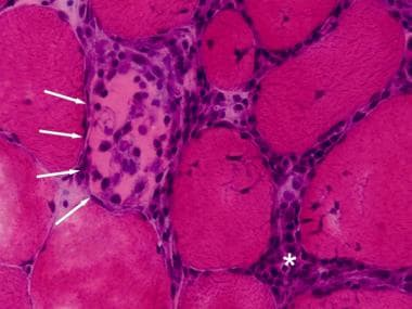 Polymyositis, myophagocytosis, H&E frozen section.