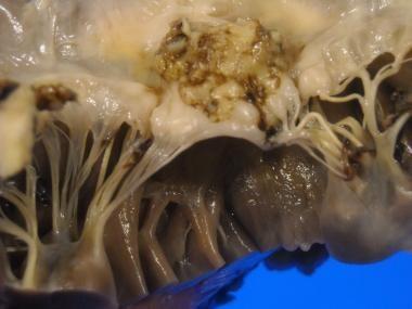 Mitral valve: endocarditis with large vegetation o