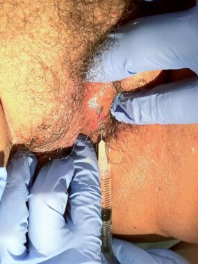 Injecting anesthetic solution under the lesion to