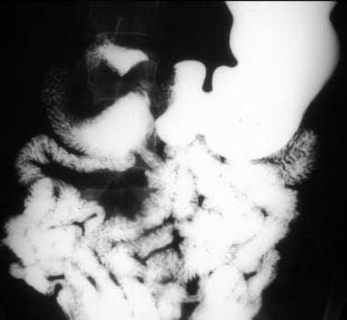 Proximal jejunal gastrointestinal stromal tumor th