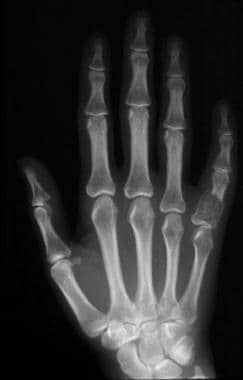 Frontal radiograph of the left hand demonstrates a