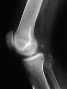 Lateral radiograph of the knee shows multiple calc
