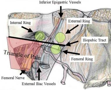 Inguinal anatomy: triangle of pain.
