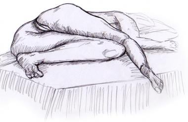 Sims lateral examination position.
