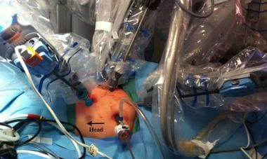 Intraoperative view of port placement.