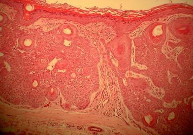 Tumor of the follicular infundibulum shows epiderm