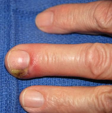 Classic presentation of paronychia, with erythema