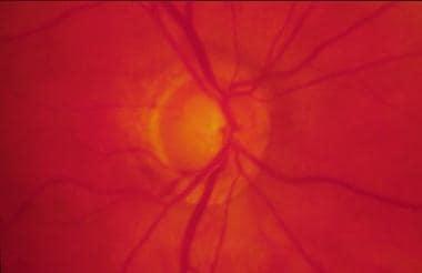 Glaucomatous optic nerve damage, with sloping and