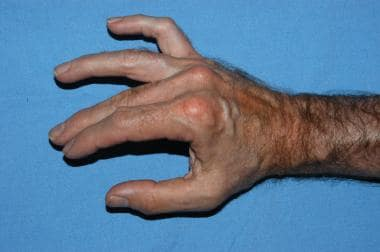 Image in a patient with a partial ulnar nerve para