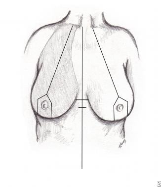 Central pedicle breast reduction. Preoperative ant