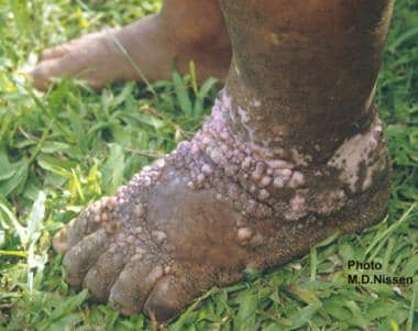 Filariasis. This is a close-up view of the unilate