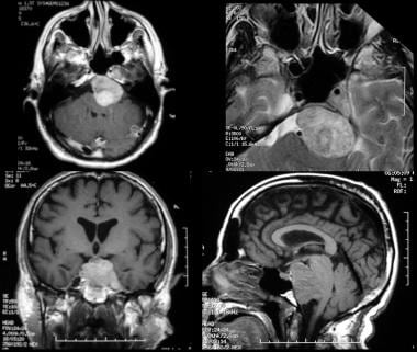 Petroclival meningioma. Contrast-enhanced T1-weigh