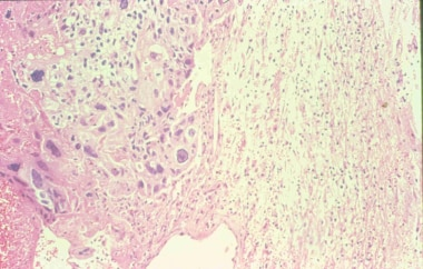 In this microphotograph of a choriocarcinoma metas