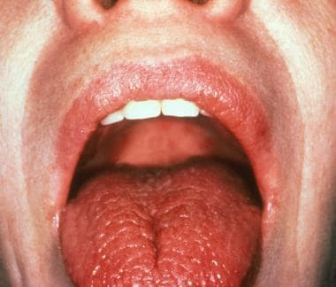 Dryness of the mouth and tongue due to lack of sal