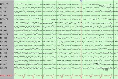 Regular (periodic) slow waves best observed at mid