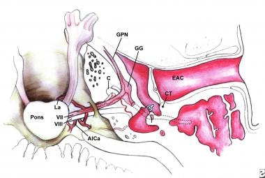 Superior view of the intracranial, meatal, labyrin