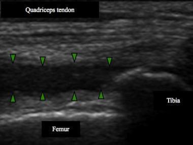 Note knee effusion in suprapatellar recess (bounde