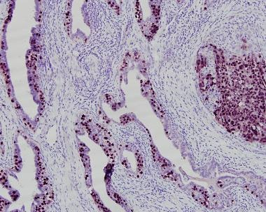 Immunohistochemical stain for OCT3/4 showing semin