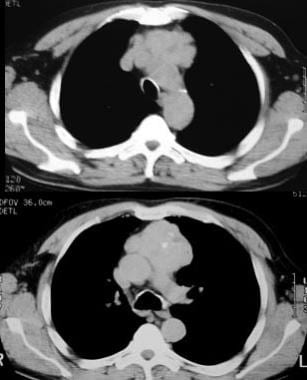 Malignant thymoma. Chest CT scan in a 61-year-old