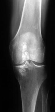 Frontal radiograph of a patient with synovial oste