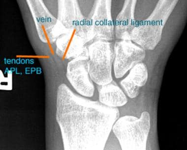 Image shows a normal scaphoid fat stripe. Fat is s