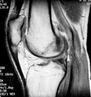 Extensor mechanism injuries of the knee. Sagittal