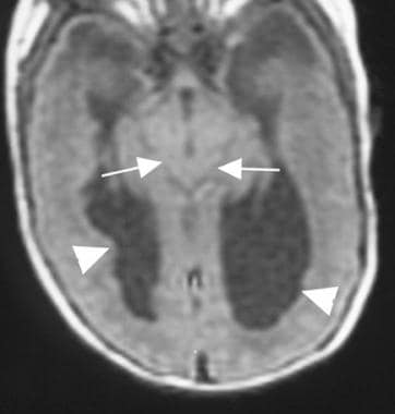 Axial T1-weighted magnetic resonance image in a pa