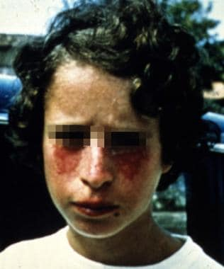 A young patient with Bloom syndrome showing the ty