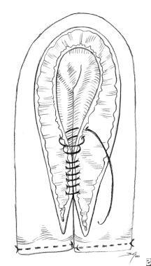Augmentation cystoplasty. Fold ileal segment, and